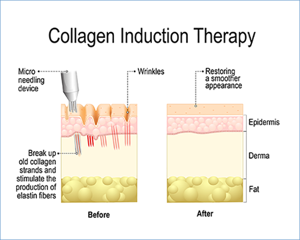 Microneedling, Heaven on Earth, Aspen. Collagen Induction Therapy.